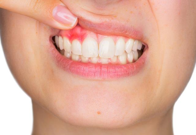 Dikkat! Dişlerinizi her fırçaladığınızda diş etleriniz kanıyorsa..