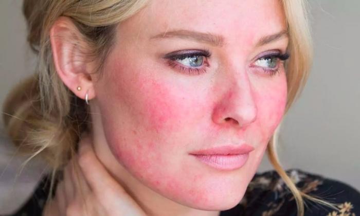 Yüzü kızartan neden: Rozasea (Gül hastalığı nedir?)