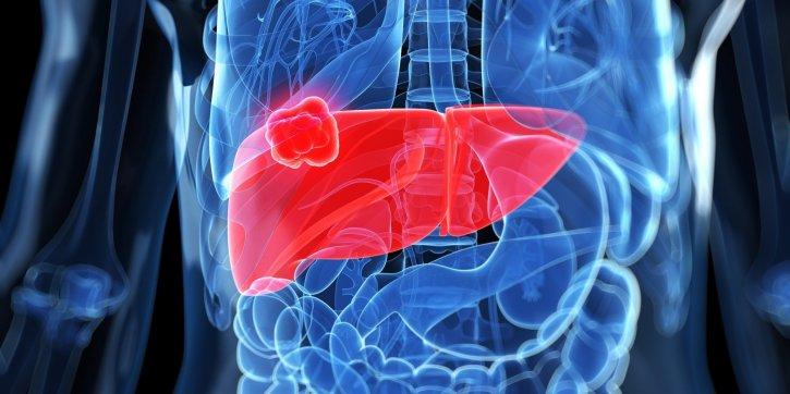 Karaciğer kanserine kanla erken teşhis