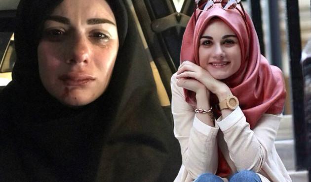 Sosyal medya fenomeni Elif Kübra Genç, saldırıya uğradı!