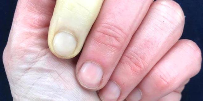 Güzel sunucunun parmağı bu hale geldi!
