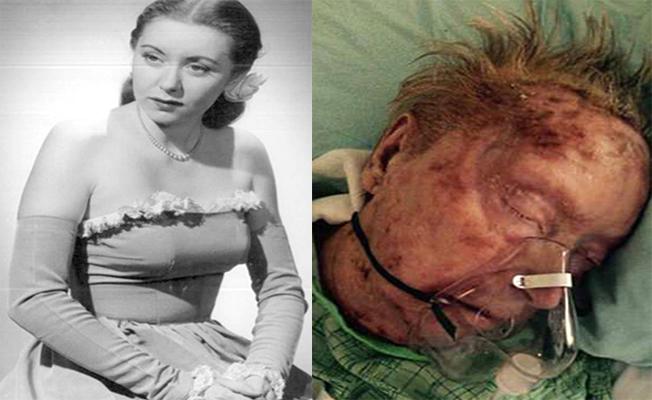 Dünyaca ünlü model, böcekler tarafından yenerek öldü!