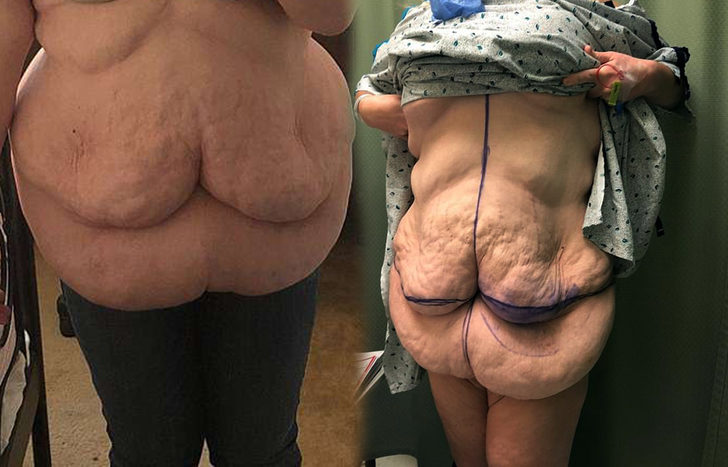 'Ameliyattan sonra bu hale geldim, fazladan bir çift göğsüm var'