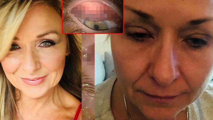 25 yıl boyunca gözündeki rimeli temizlemeyen kadın doktorları şok etti!
