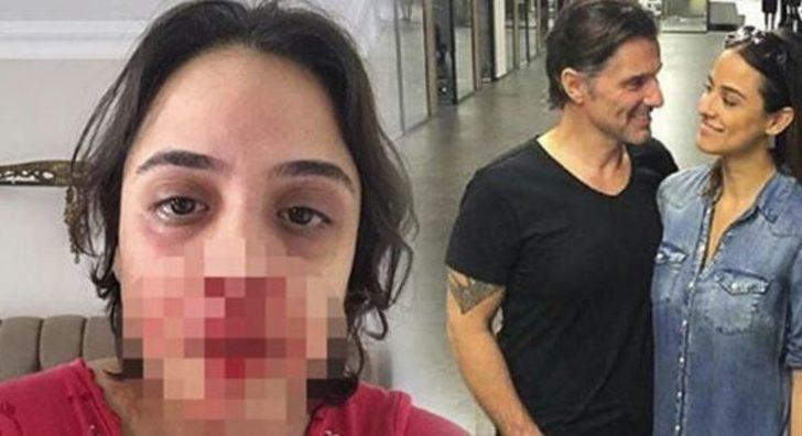 Şiddet skandalında flaş gelişme! Davayı geri çekti