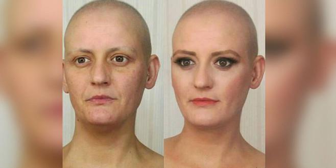 Kanserli hastayı oynadı, 9 ay sonra…