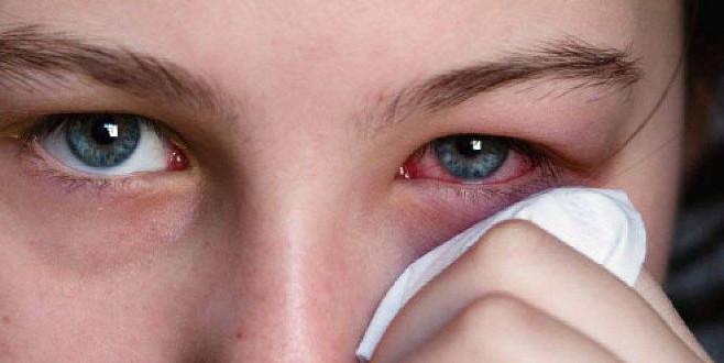 Göz enfeksiyonuna bitkisel çözüm