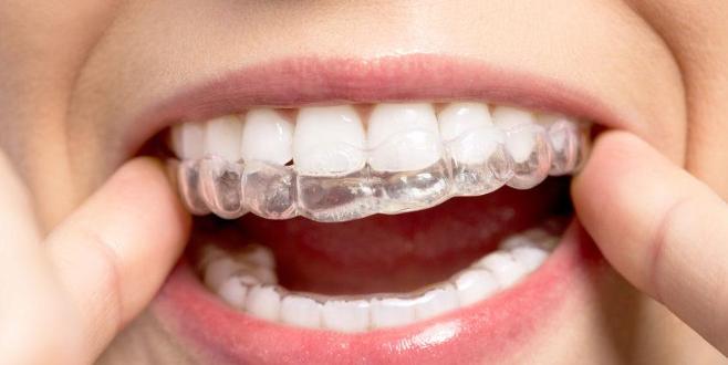 'Görünmeyen diş teli tedavide yeterli sonucu vermiyor'