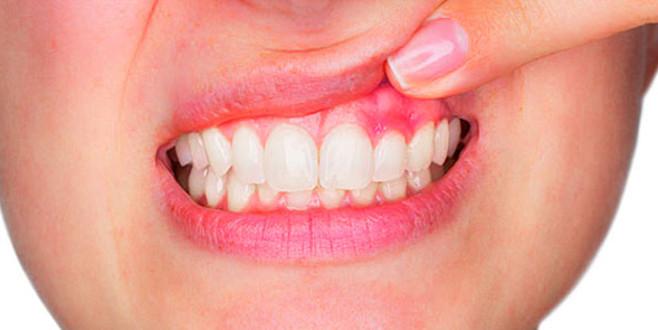 Diş eti kanamasına doğal çözüm