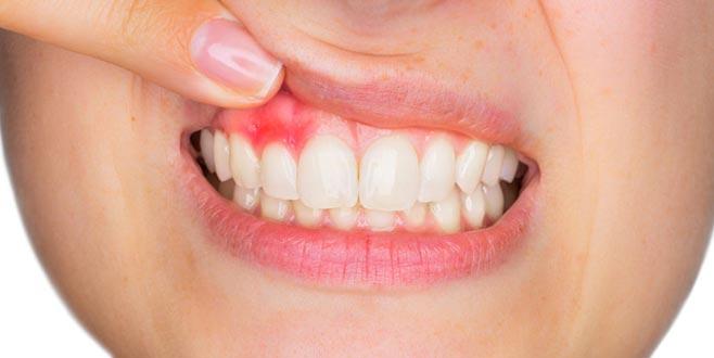 Diş eti çekilmesine ne iyi gelir?