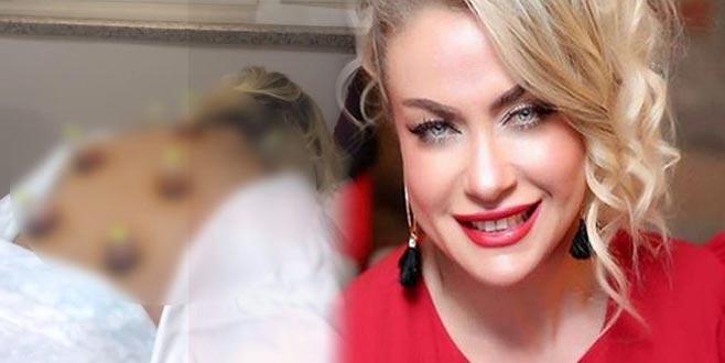 Yeliz Yeşimen'in hacamat videosu olay oldu! Tepki yağıyor