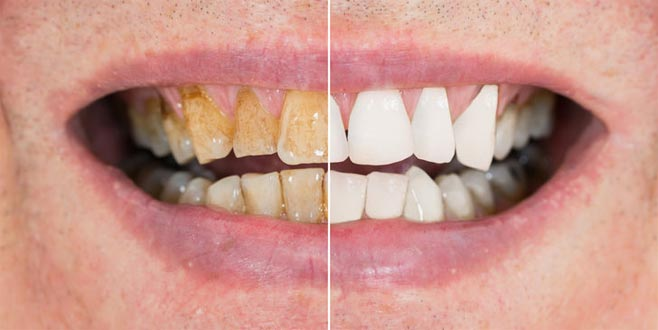 Diş taşlarından kurtulmanızı sağlayan 3 farklı yöntem