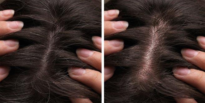 Eğer saçlarınızda beyaz varsa sakın bunu yapmayın!