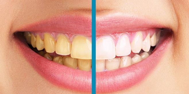 Diş sararması kabusunuz olmasın
