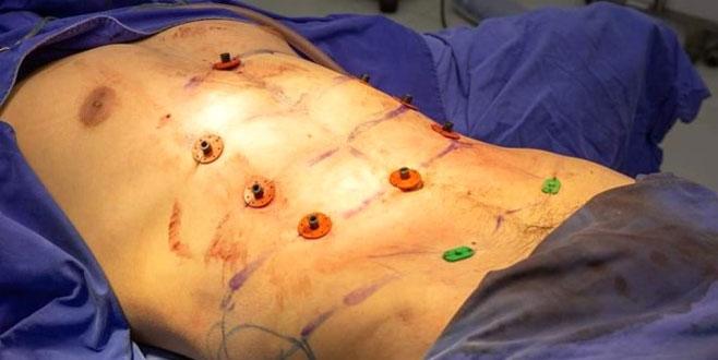 Bu operasyonu duyan erkekler hastaneye koşuyor!