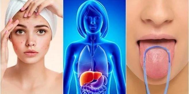 Karaciğerinizin toksinlerle kaplı olduğuna dair 7 uyarıcı işaret