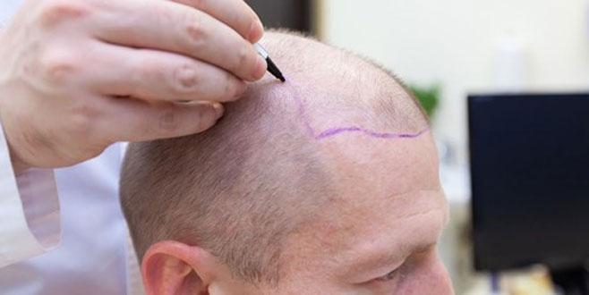 'Saç ekimi hastane ortamında yapılmalı'