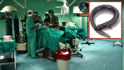 Doktorları bile şoke eden olay! 'Yılanla' kabızlıktan kurtulmayı denedi