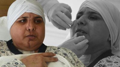 Bursa'ya dönüş yolunda yüzü ikiye ayrıldı! 10 saatlik ameliyatla birleştirildi