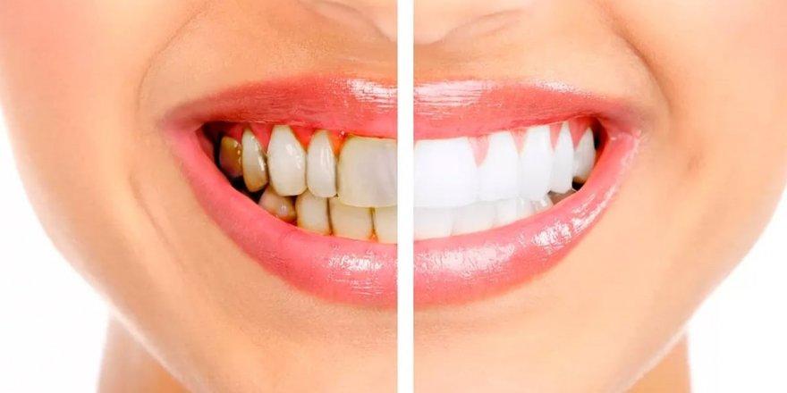 Sizi dişçiye gitmeden kurtaracak!