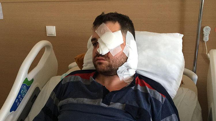 Avukatı gözünden bıçaklamıştı! Mahkeme kararı belli oldu