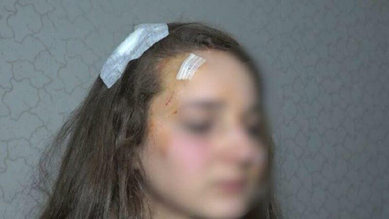 Bursa'da genç kadın sokak ortasında dehşeti yaşadı