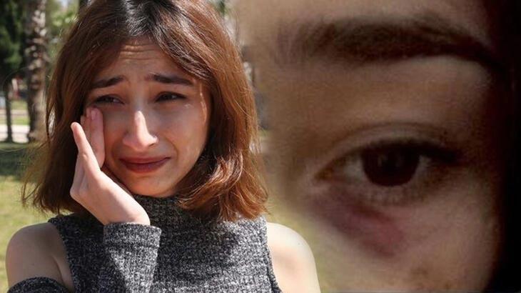 Şiddet gören Gülsüm Demiray: Ölmek istemiyorum