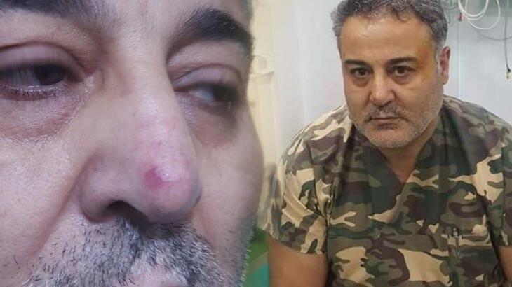 Doktor, hasta yakınının yumruklu saldırısında yaralandı