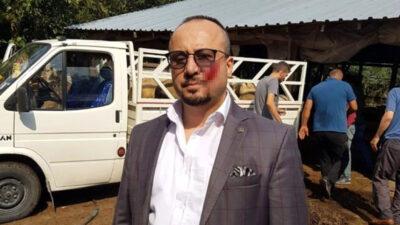 Bursa'da haciz sırasında avukatın yanağını ısırdı! İşte cezası…