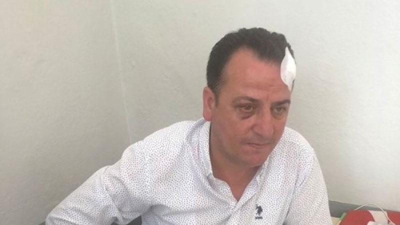 Bursa'da 'Belediyede dövüldüm' demişti, suç makinesi çıktı