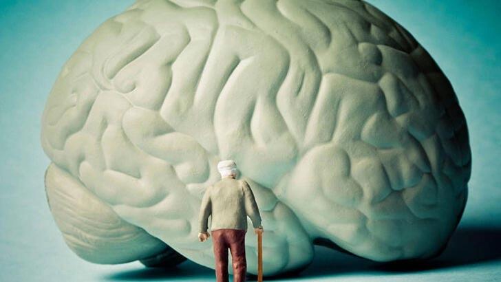 Alzheimer ilacı onaylandı! 20 yıl sonra bir ilk…