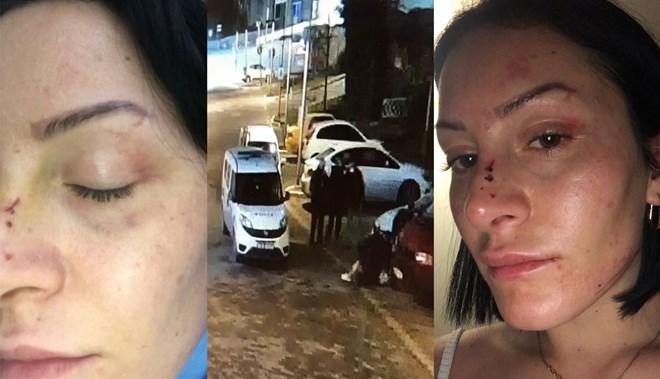 Polisten kadına dayak iddiası: Doktor az bile benzetmişsiniz dedi